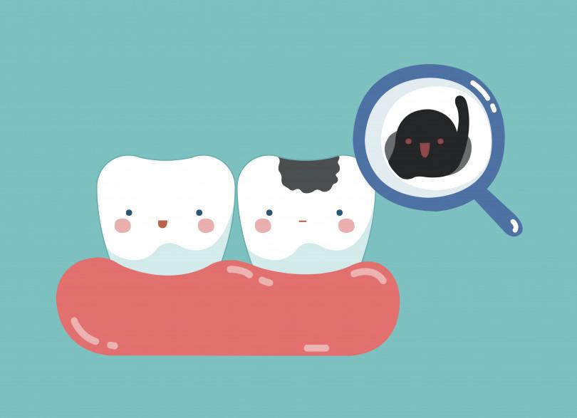 歯に黒い点ができていたら、どうしたらいいの?